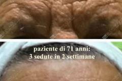 anti-aging-71enne