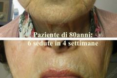 anti-aging-viso-80enne