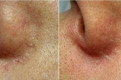 Capillari-naso-prima-e-dopo