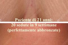 smagliature-bianche-seno-e-abbronzatura1