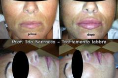 Filler labbra con acido ialuronico 10