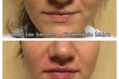 Filler labbra con acido ialuronico 3