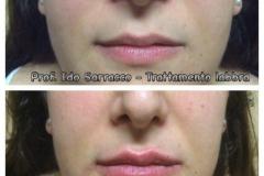 Filler labbra con acido ialuronico 5