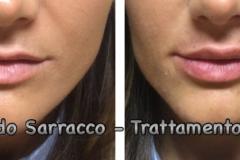 Filler labbra con acido ialuronico 8