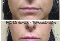 Filler labbra con acido ialuronico 6