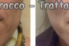 Filler labbra con acido ialuronico 9