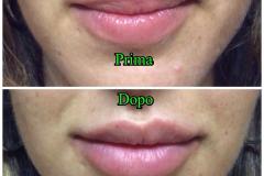 Filler labbra con acido ialuronico 1