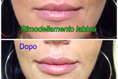 Filler labbra con acido ialuronico 2
