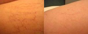 Trattamento laser dei capillari delle gambe - prima e dopo