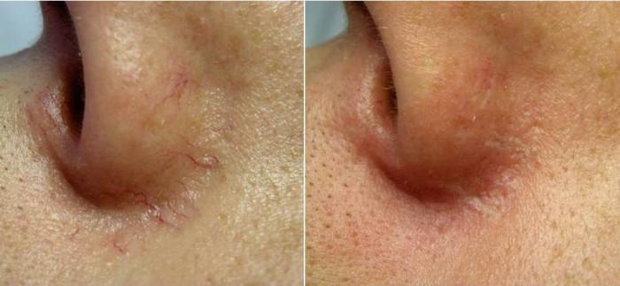 Capillari naso prima e dopo