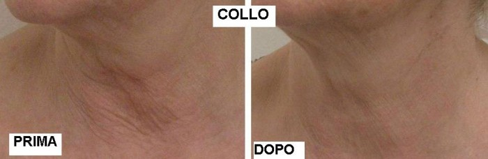 Filler al collo con acido ialuronico