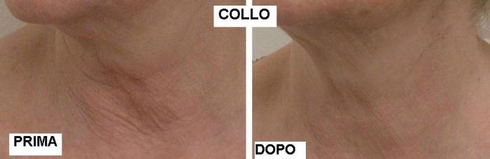 Filler al collo con acido ialuronico