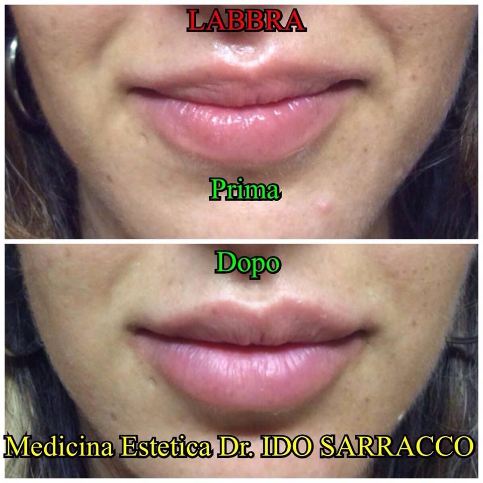 allergia acido ialuronico