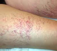 Trattamento laser dei Capillari sulle gambe