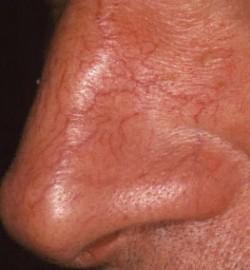 Trattamento capillari naso e viso