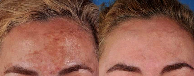 Melasma fronte prima e dopo