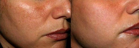 Melasma prima e dopo