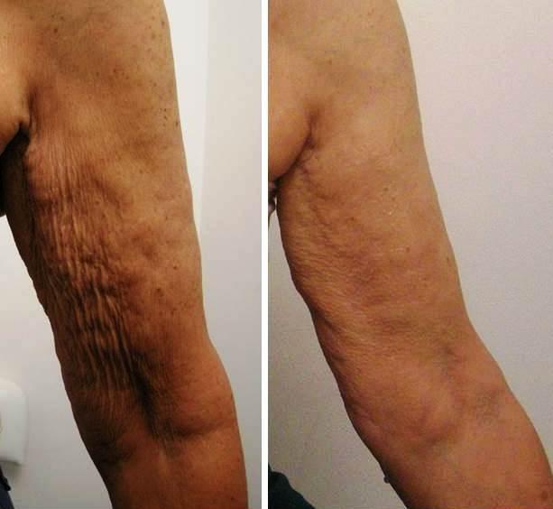 Radiofrequenza braccia prima e dopo
