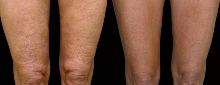 Radiofrequenza gambe prima e dopo
