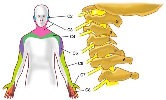 Segmenti cervicobrachialgie