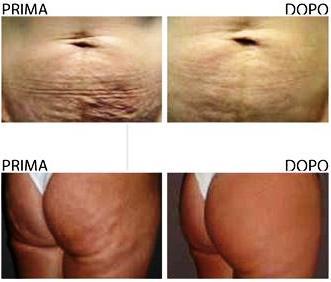 Carbossiterapia, trattamento anti cellulite prima e dopo