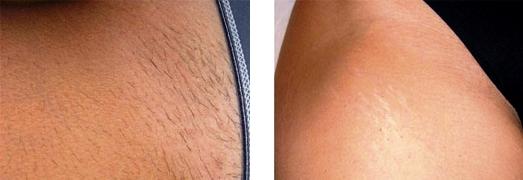 depilazione inguine prima dopo