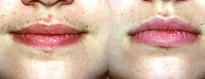 epilazione baffetto prima e dopo