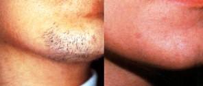 epilazione definitiva barba