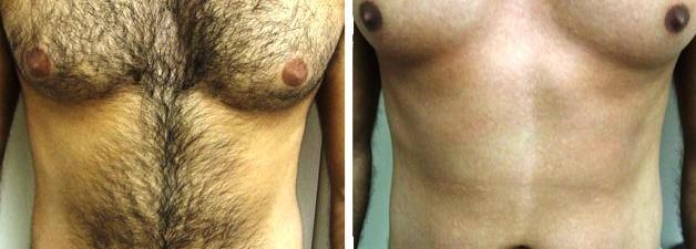 epilazione petto prima e dopo