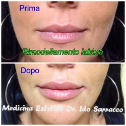 Risultati di un trattamento di rimodellamento labbra, prima e dopo