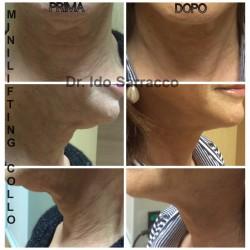 Risultati di un trattamento di minilifting del collo