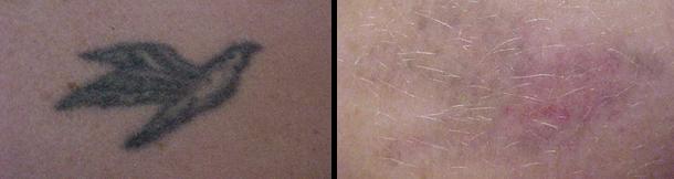 laser tattoo prima e dopo 2