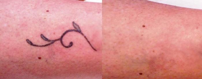 laser tattoo prima e dopo