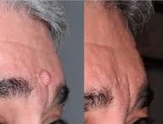 Rimozione dei capelli sul viso prima e dopo