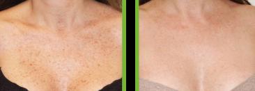 trattamento laser delle macchie scure ipercromie decolletè