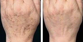 Trattamento laser delle macchie scure prima e dopo