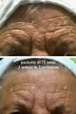 anti-aging 71enne