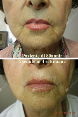 anti-aging viso 80enne