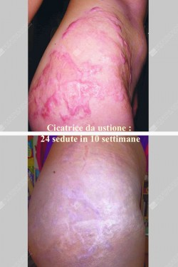 cicatrice_004